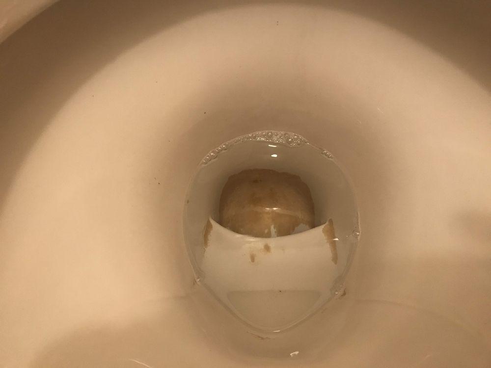 便器底の尿石