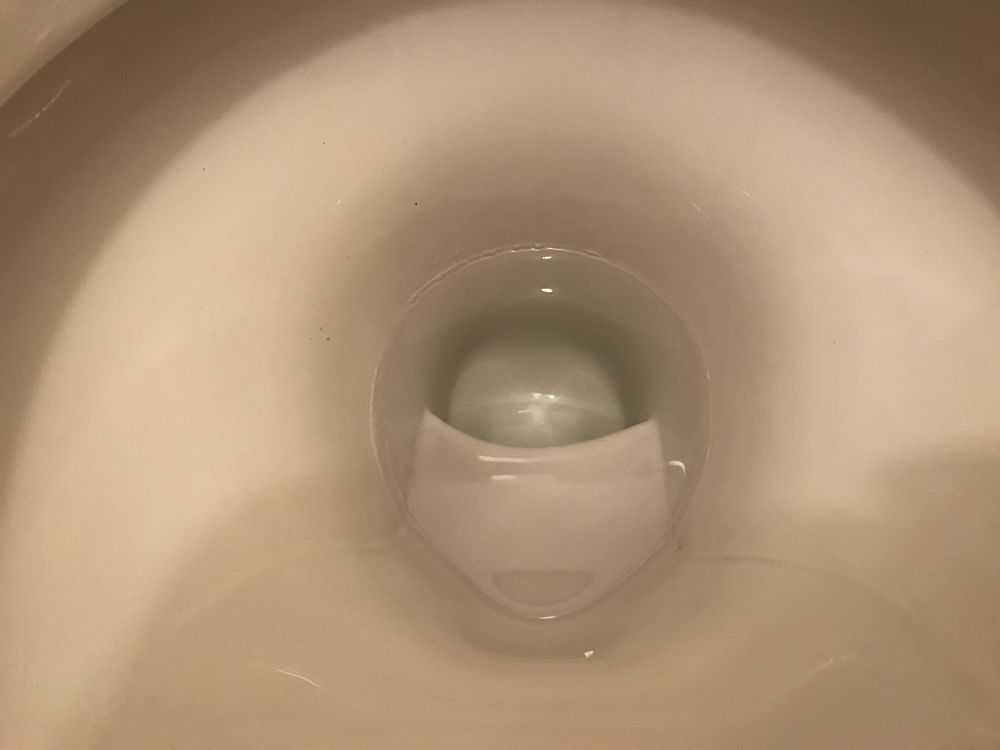 尿石除去後の便器